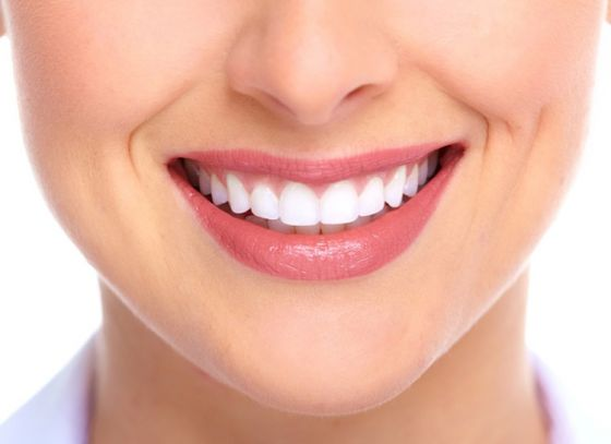 Get a Smile to kill for: with 5 easy steps!
