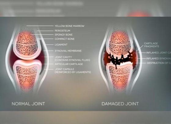 5 Ways to Get Rid of Rheumatoid Arthritis